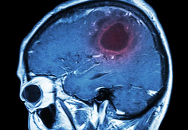MR ile görüntülenmiş Beyin Tümörü